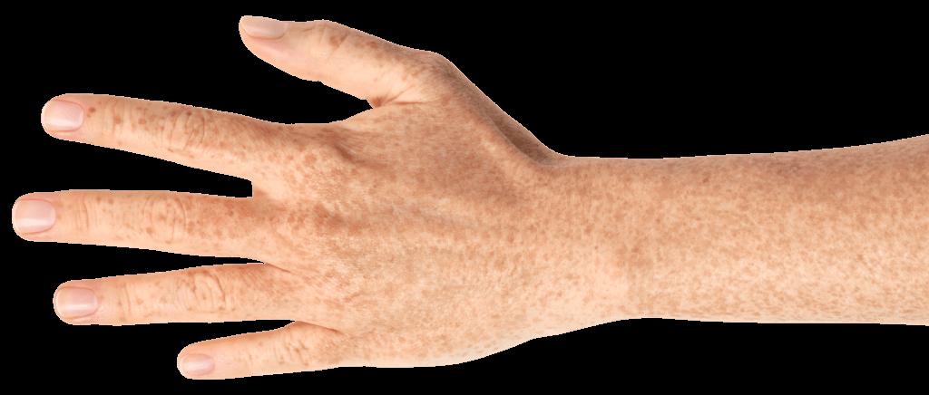 Hand mit Sommersprossen und gesunden Fingernägeln