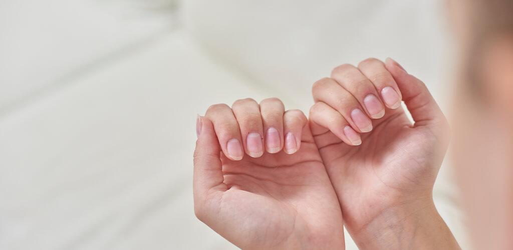 Behandlung von Nagelverfärbungen